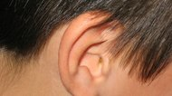 How to Repair a Stretched Earlobe