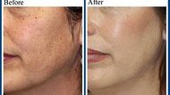 How Does Hyperpigmentation Occur?