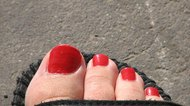 How to Bleach Toenails Back to White