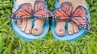 How to Cover Up Corns When Wearing Sandals