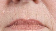 How to Reduce Wrinkles Around the Mouth Without Botox