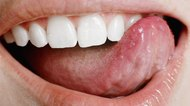Remedy for Salt Bumps on Tongue