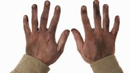 How to Clean Dirty, Cracked Skin on the Hands