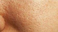How to Use a Biore Pore Strip