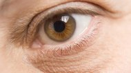 Cost of Removing Bags Under the Eyes