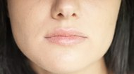 How Can I Cover a Cold Sore?