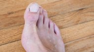How to Fix a Split Toenail