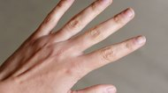 A Home Remedy for Cracked Cuticles & Dry Hands