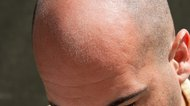 How to Eliminate the Shine of a Bald Head