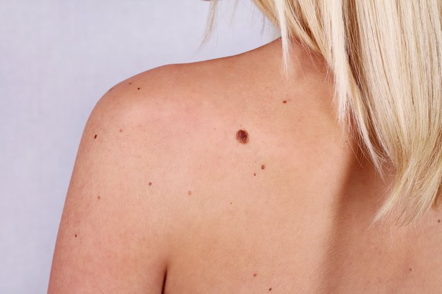 Young woman with moles and a birthmark on her back