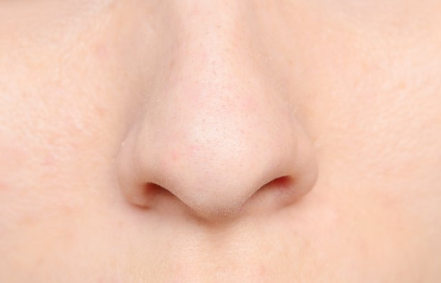 how to get rid of veins on your nose