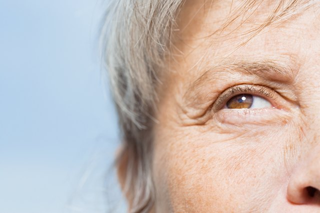 Can Hemorrhoid Cream Help Wrinkles?