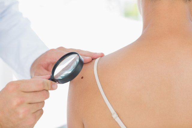 Doctor examining mole on woman's shoulder