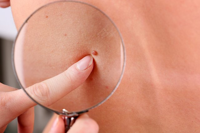 A dermatologist examines a patient's skin tag