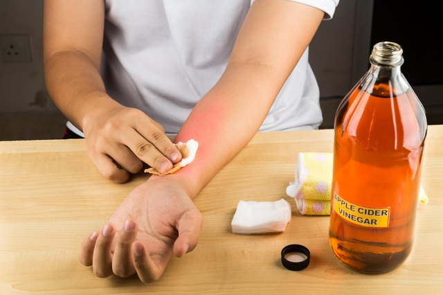 Apple cider vinegar natural remedy for itch, fungal, bruises, burns