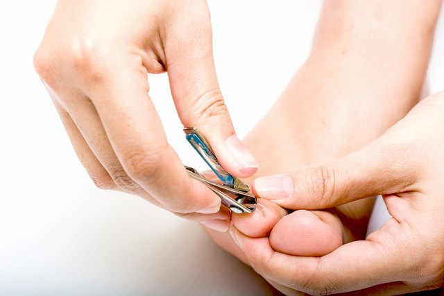 how to cut a v-shape in a toenail