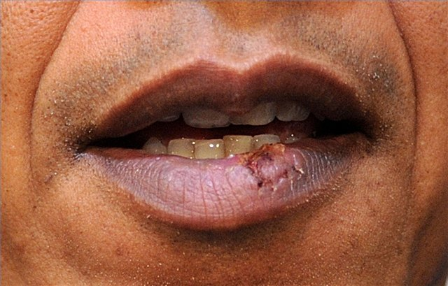 how to stop a cold sore