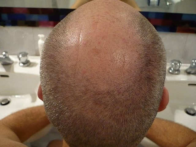 How To Cut A Bald Mans Hair Better Than A Barber Leaftv