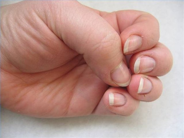 How to Take Care of a Split Nail Bed | LEAFtv