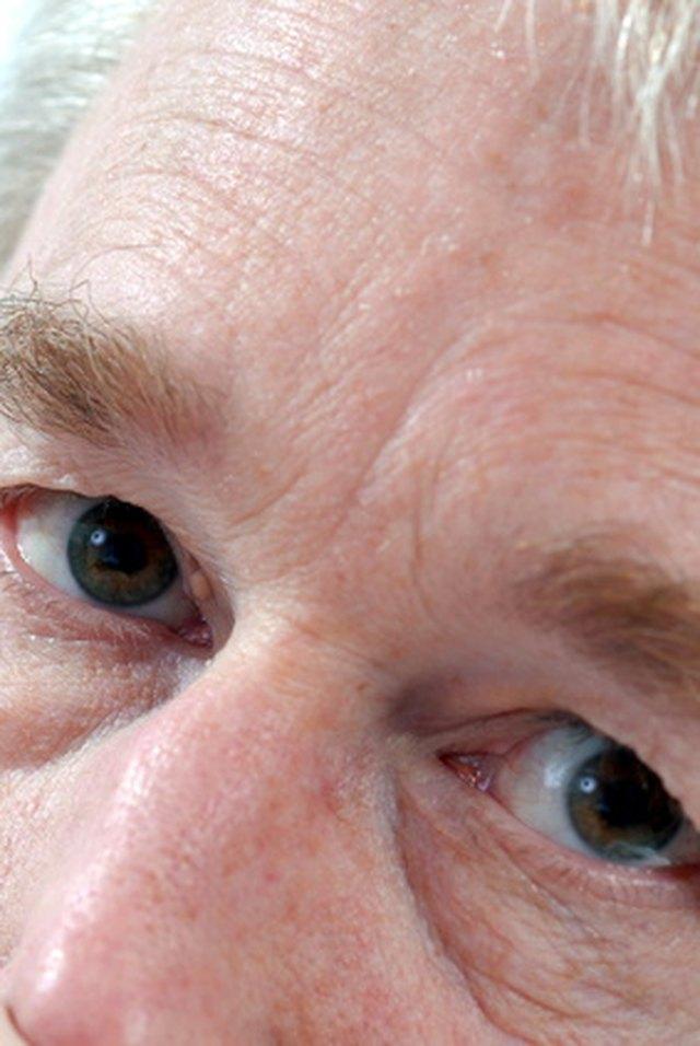 sunken eyes meaning - 640×956