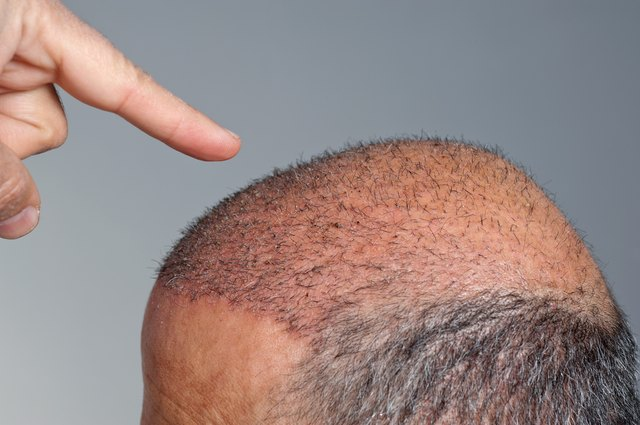 Image result for Hair Loss Treatment istock