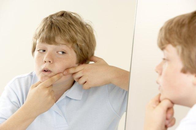 Boy popping pimple