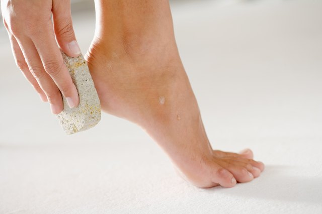 How to get rid of rough dry skin at the bottom of your feet leaftv video of the day ccuart Gallery