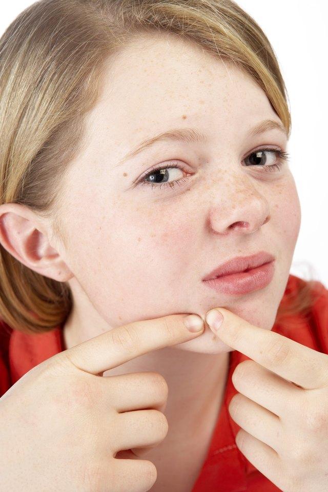 Teenage girl picking at acne
