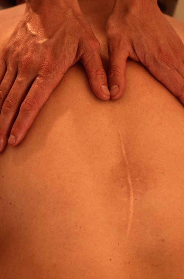 Massage Therapist Massaging a Man's Back