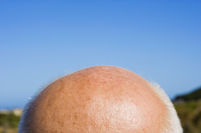 Balding head of a man outdoors