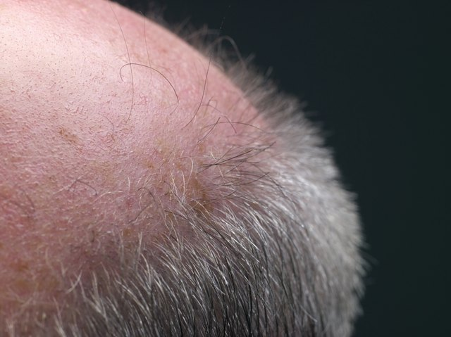 Macro shot of man's bald spot