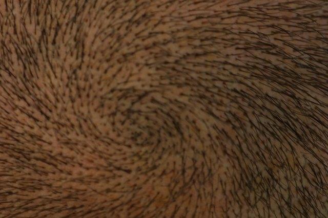 Spiral hair pattern