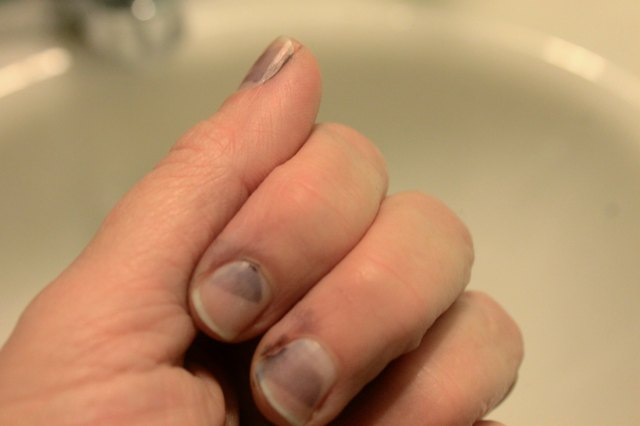 How To Remove Dye Stains From Fingernails