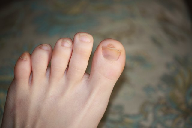 Remove Any Nail Polish On Your Toes The Formaldehyde In Means That Wearing It Constantly Even Pale Colors Stains Nails By Binding With And