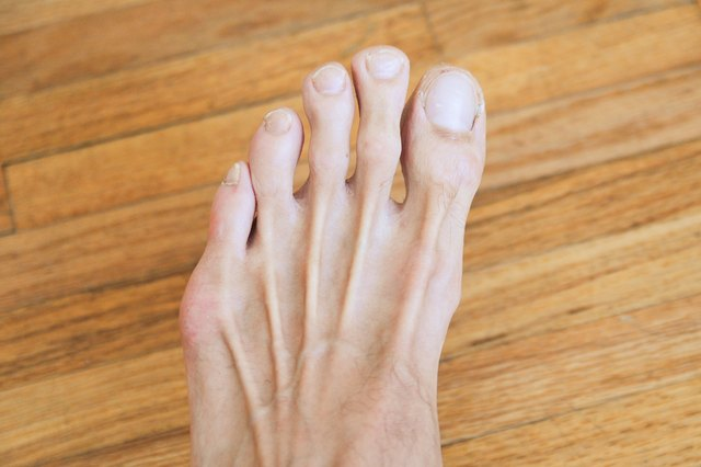 How To Remove Dark Spots From Toes Leaftv