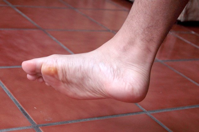 The Skin Begins To Dry Out And Build Up Protective Calluses Keep Foot From Being Injured Increase In Thickness Of Sole Causes Discomfort