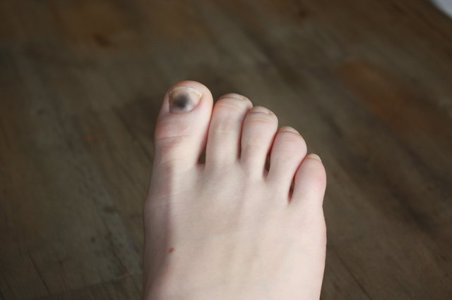 Determine Whether Your Toes Have Suffered Any Trauma In The Last Month Nail Hematomas Bruises That Form Under Plate And Turn It A Blue Black