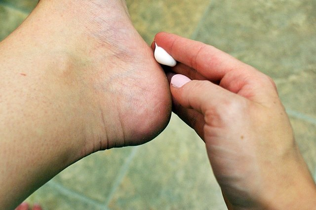 how to get rid of dry skin between toes