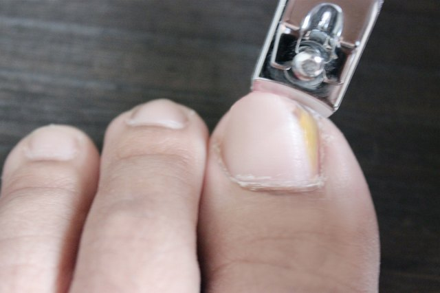 Trim The Toenail That Is Affected With Nail Fungus Immediately After T Cleanse Your Clippers Hot Soapy Water Then Rinse Them