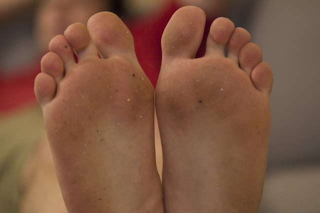 Why Are My Feet Burning? Causes and Treatments - WebMD