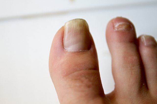 How To Use Rubbing Alcohol To Kill Nail Fungus