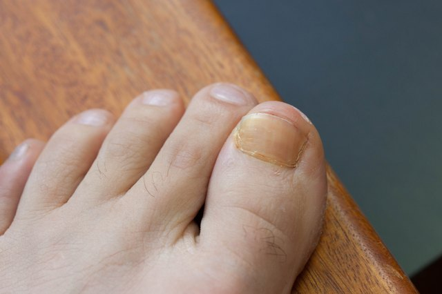 If You Have Brown Toenails Don T Despair There Are Steps That Can Take To Treat The Condition And Prevent It In Future